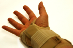 Hand With RSI In Splint